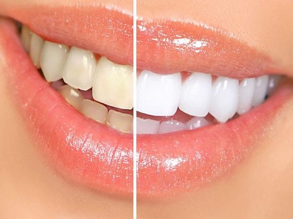 Cách làm trắng răng tại nhà cực hiệu quả