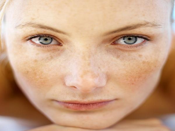 Cách trị nám da mặt từ thiên nhiên hiệu quả