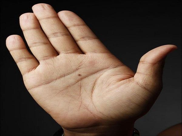 Ý nghĩa nốt ruồi trong lòng bàn tay phải